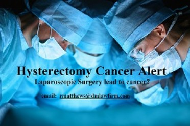 Uterine Cancer Lawsuit