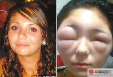 ジアミンアレルギー