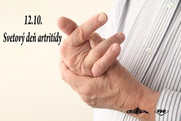 10_12_artritida