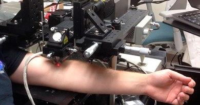 Laser, który niszczy komórki nowotworowe w krwiobiegu