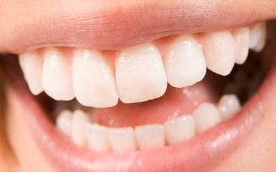Pastylka zamiast dentysty? Cukierek nowej generacji odbuduje szkliwo