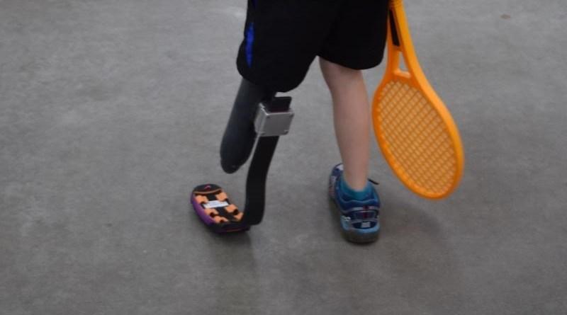 protezy kończyn dla dzieci
