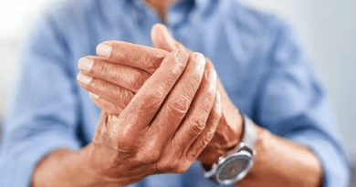 jak wyleczyć artretyzm