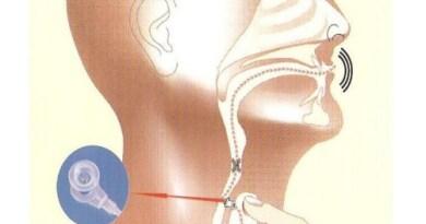 Specjalna proteza przywróciła pacjentowi zdolność mówienia
