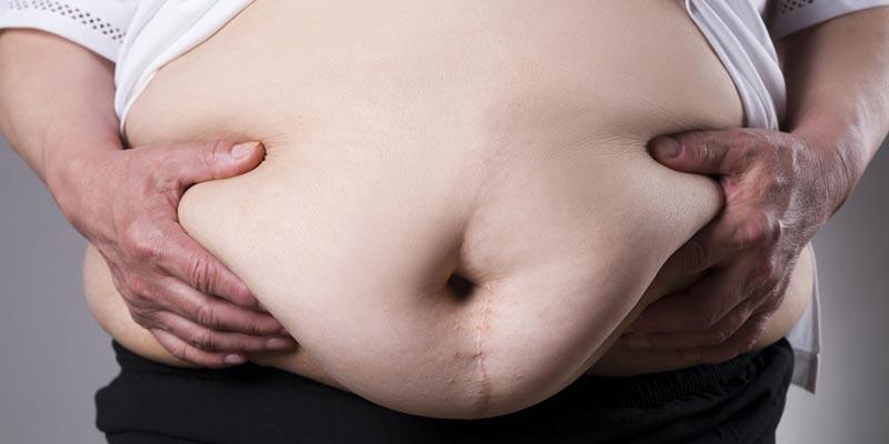 El problema de la obesidad