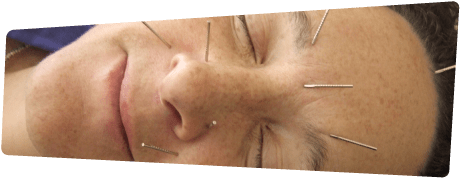 Smiling Woman Acupuncture