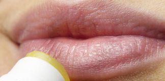 Es importante tener un bálsamo labial siempre a mano. (Foto: Pixabay)