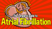 The Complete Guide to Atrial Fibrillation