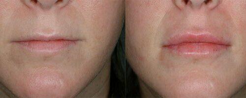 Comment le traitement esthétique skinbooster contribue à la. Acide Hyaluronique Docteur Casacci