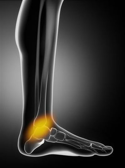 Fracture De Fatigue Ou Tendinite : fracture, fatigue, tendinite, Douleurs, Cheville, Symptômes,, Traitement,, Définition, Docteurclic.com