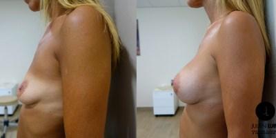 augmentation-mammaire-nice-docteur-luini-2