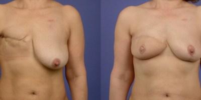 avant-apres-reconstruction-mammaire-autologue-antibes-1