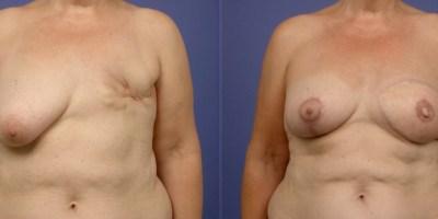 avant-apres-reconstruction-mammaire-autologue-antibes-2