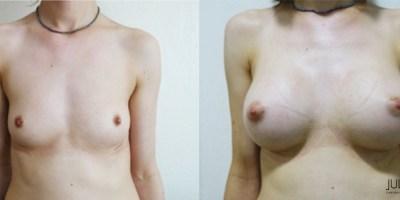 patient001-augmentation-mammaire