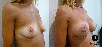 augmentation mammaire nice