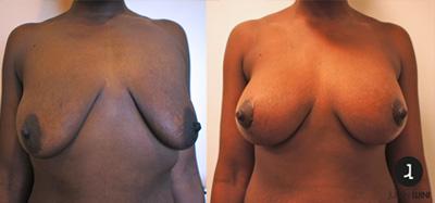 lifting mammaire nice