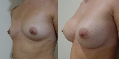 augmentation-mammaire-nice-1