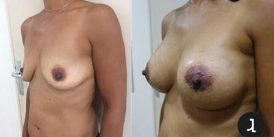 Augmentation mammaire Docteur Julien Luini chirurgien esthétique