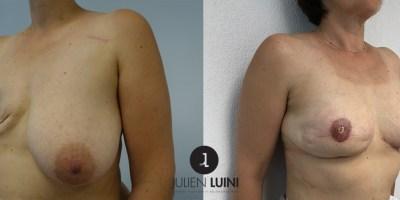 Reconstruction mammaire après mastectomie par lipofilling
