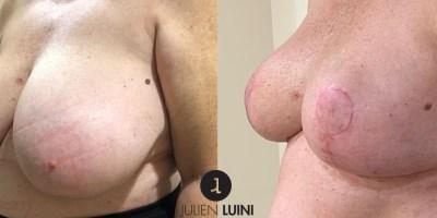 Chirurgie esthétique  : Réduction mammaire