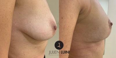 lifting mammaire/cure de ptose mammaire