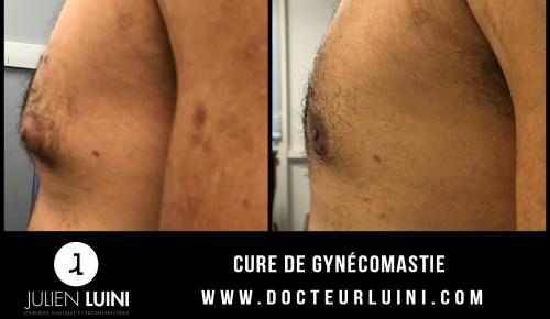 Cure de gynécomastie