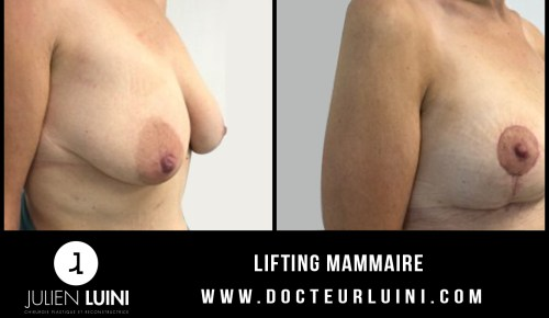 Lifting mammaire