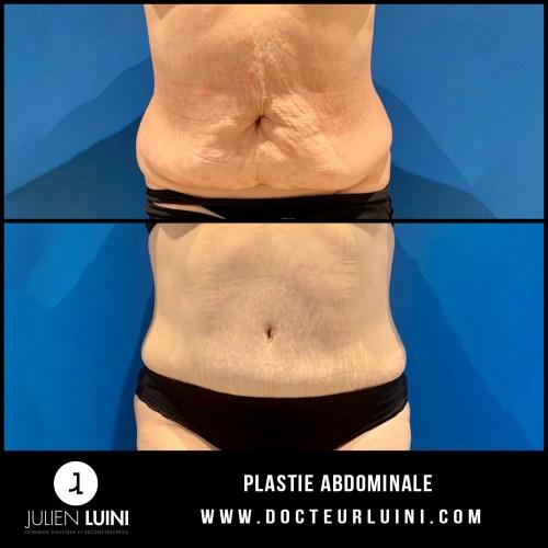 chirurgie-esthétique-plastie-abdominale