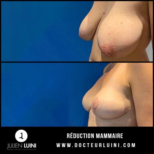 Chirurgie esthétique du sein : réduction mammaire