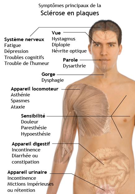 Sclrose En Plaques Quels Sont Les Symptmes Docteur