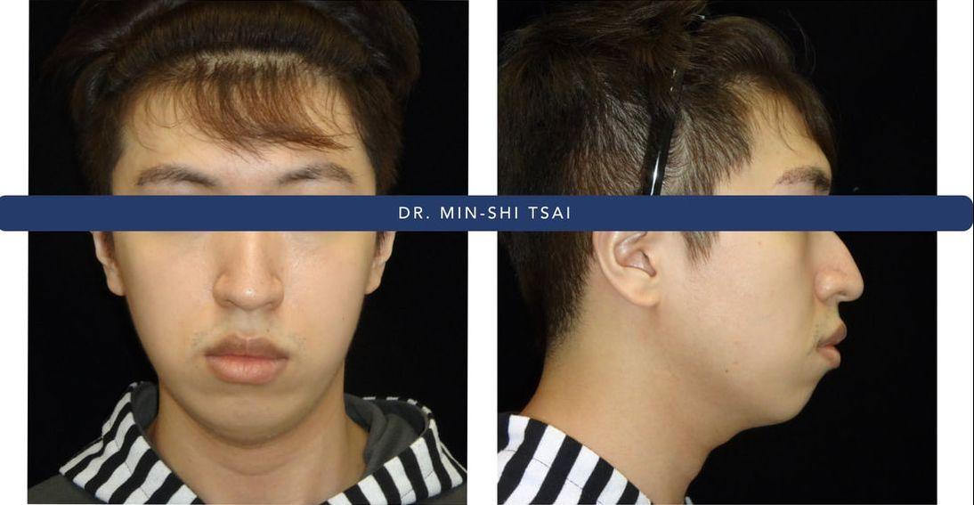 下巴消失 - 蔡明晞 齒顎矯正專科醫師