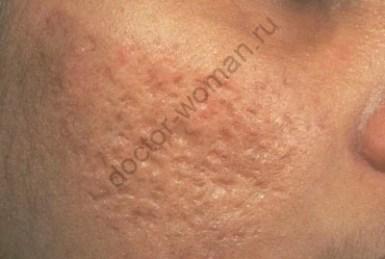 Последствия угревой сыпи и методы ее лечения