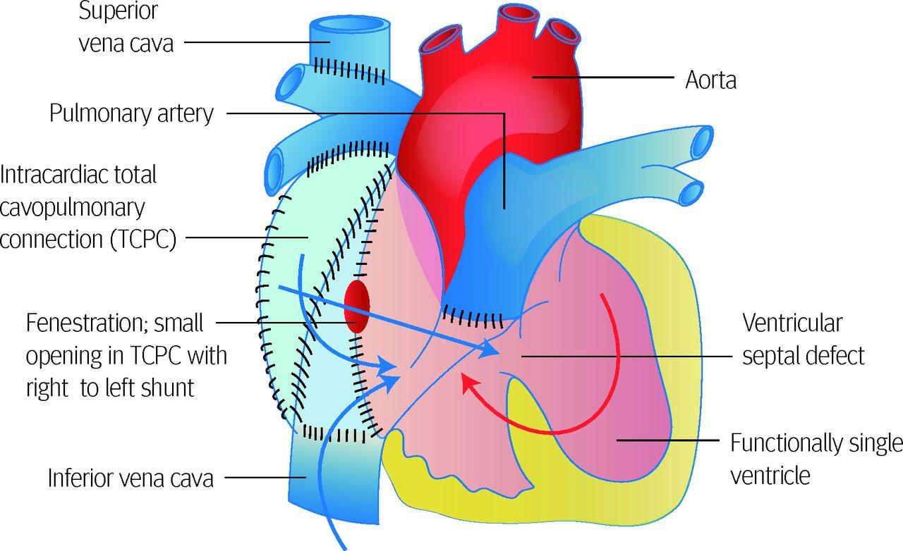 Congenital heart disease in adults - Doctor
