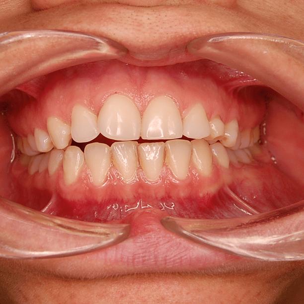 enfermedades de la mucosa oral