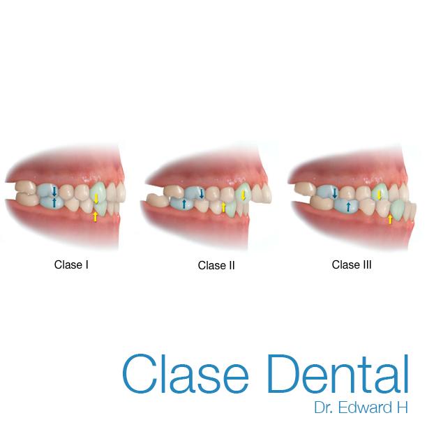 clase dental Dr edward H