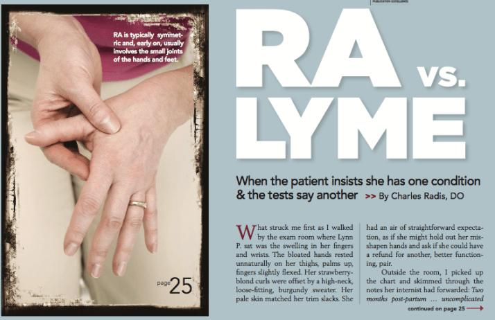 Rheumatoid Arthritis vs. Lyme
