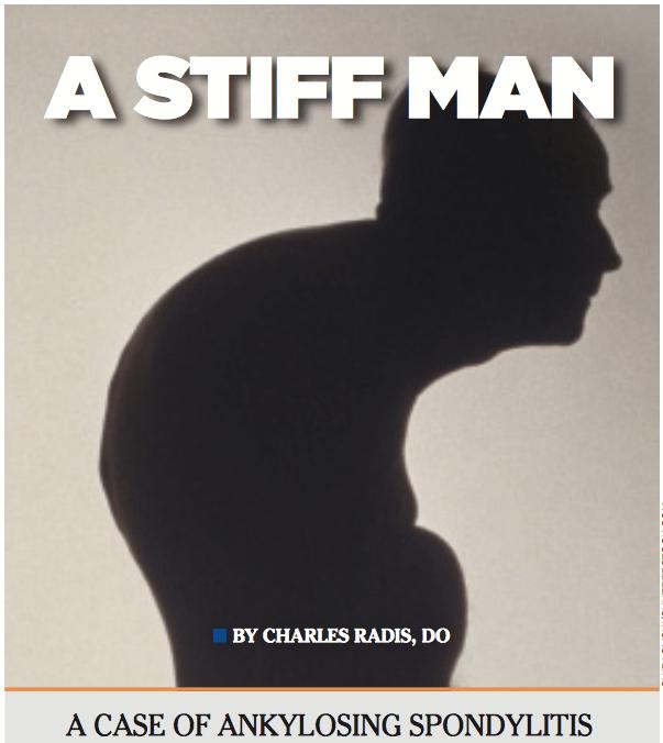 Stiff Man