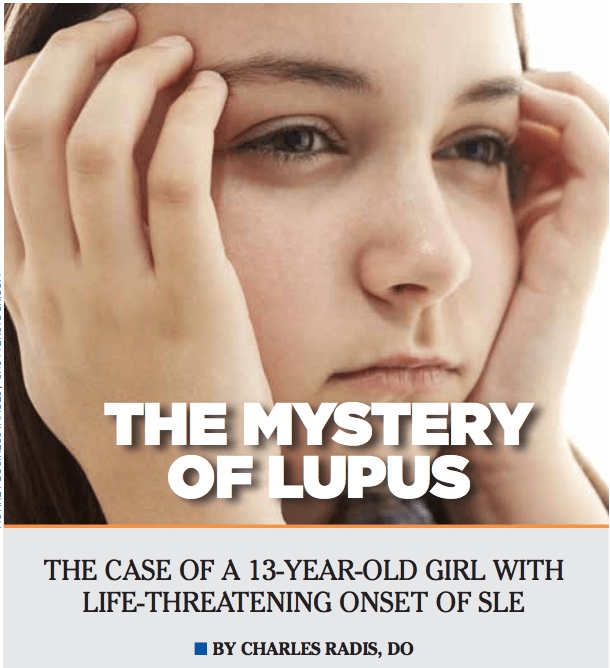 The Mystery of Lupus