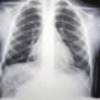 Diagnosis Diagnosis Walking Pneumonia