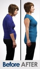 before-after-posture-correction-women-2