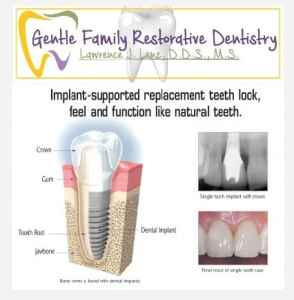 Image of Dental Implant Restorations service Naperville