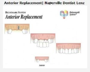 image of teeth anterior replacement service naperville