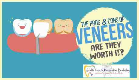 Image of The veneer process naperville dentist lenz