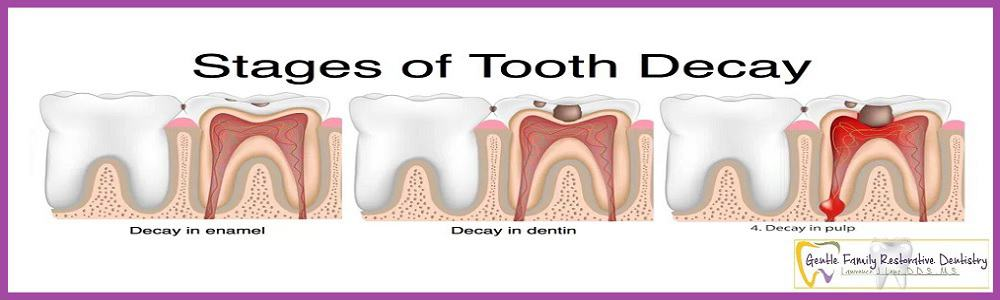 image of Tooth Decay treatment Naperville Dentist