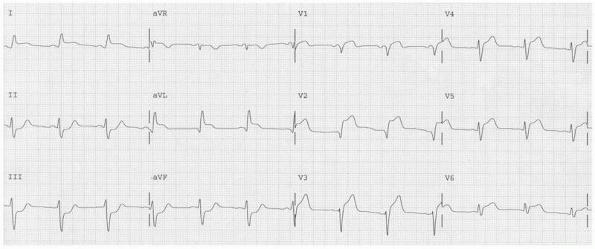 Acute Coronary Syndrome: ST Elevation Myocardial