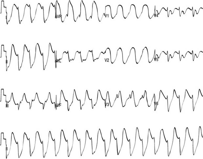 Electrophysiology Questions for Pediatric Cardiology Board