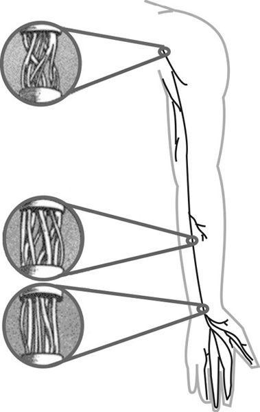 PRINCIPLES AND TECHNIQUES OF PERIPHERAL NERVE REPAIR