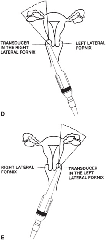 Obstetrical and Gynecologic Sonography and Transvaginal