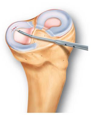 durerea de spate inferioară dă șold dislocarea tratamentului articulației degetului mare