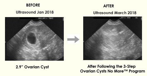 Ovarian Cyst Miracle eBook